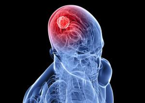 Активный образ жизни снижает риск развития рака и злокачественных опухолей