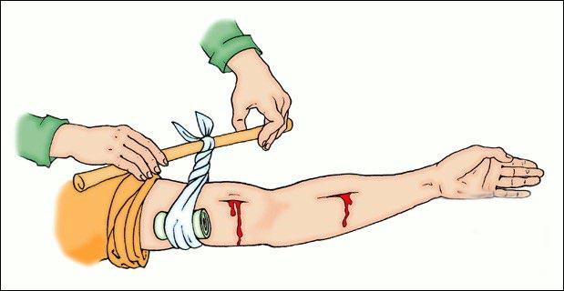 Кровотечение рука