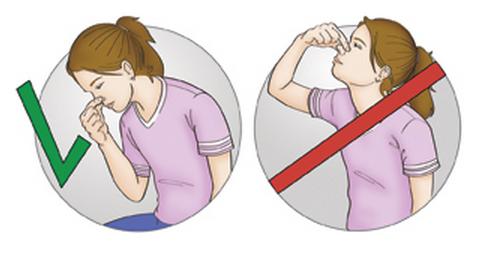 5 фото кровотечение не запрокидывать голову