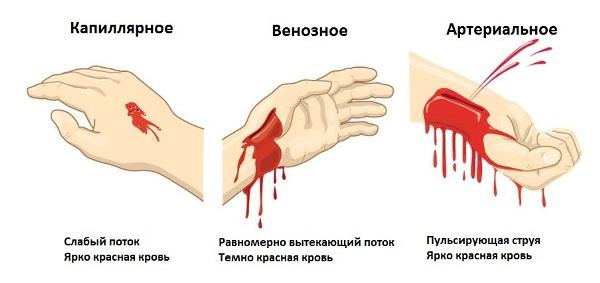 тип кровотечения